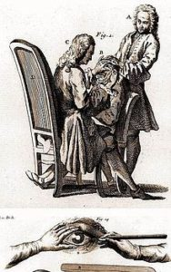 Stærestikning. Illustration fra <em>Dictionnaire Universel de Médecine</em> (1746-1748)