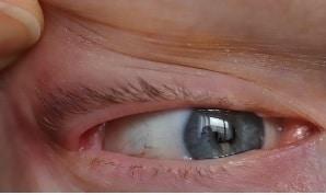 Åbning ved øjenlåg